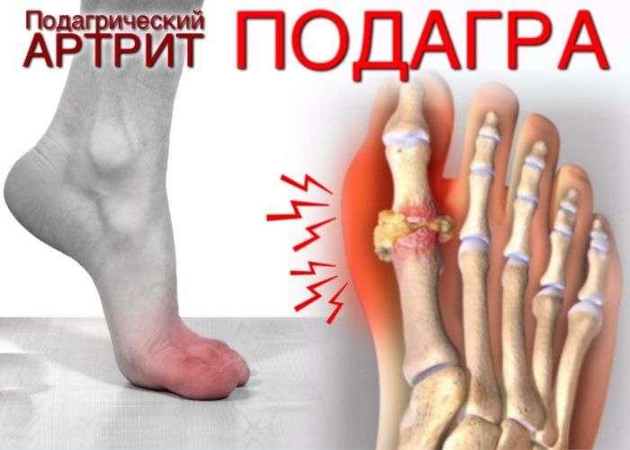 Мигриращ артрит