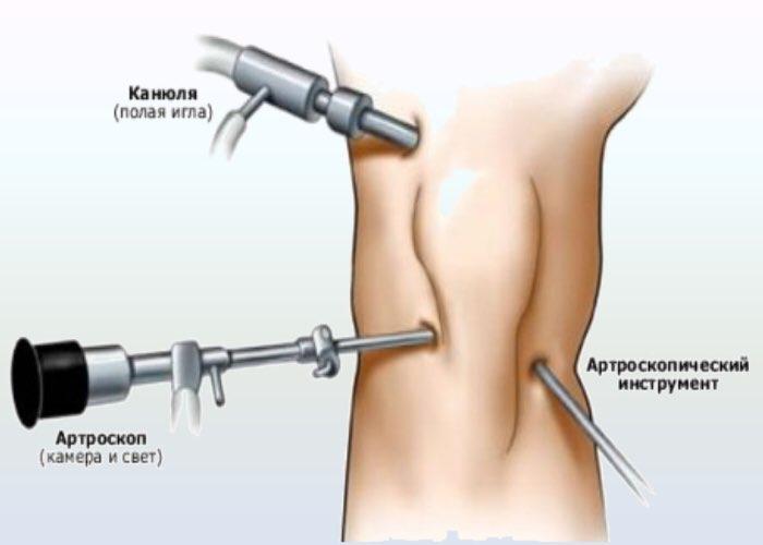 Артроскопическое удаление внутрисуставных тел обучение узи суставов